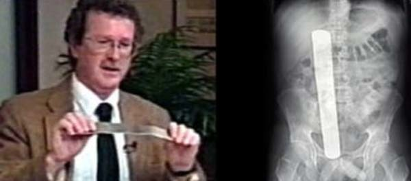 4.) Donald Church was having a tumor removed from his abdomen at the University of Washington Medical Center in Seattle in June 2000. After recovering and leaving, he discovered that doctors left a 13 inch-long retractor in his abdomen by mistake.