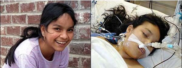 2.) 17 year-old Jésica Santillán died 2 weeks after receiving a heart and lung transplant…because she was given the wrong ones. The organs'blood type did not match her own.
