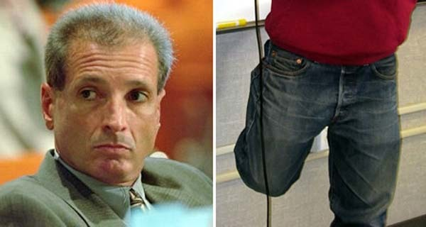 7.) A surgeon accidentally removed the wrong leg of 52 year-old Willie King in 1995. There was a chain of errors before the surgery took place, resulting in the wrong leg being prepper for the procedure. The surgeon's team realized in the middle of the procedure that they were operating on the wrong leg, but it was too late. They had to remove the whole leg.